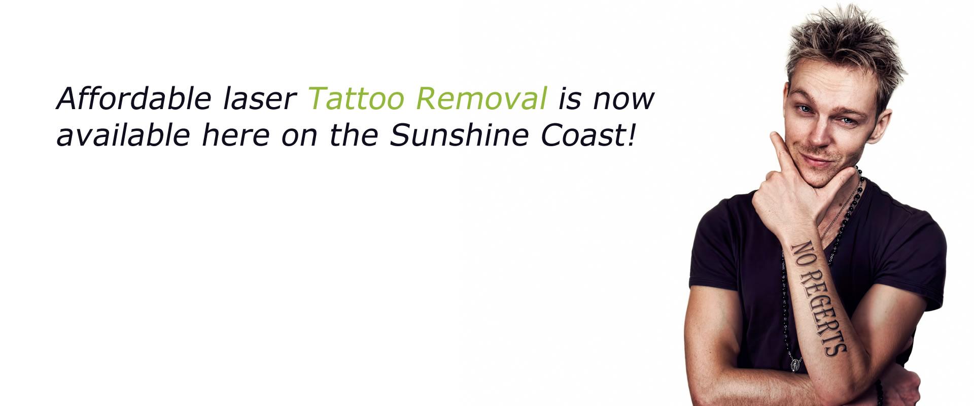 Slider Tattoo Removal
