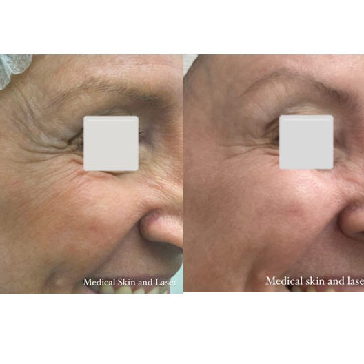 Before & After – Antiwrinkle Injections